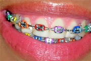 Preview braces preview