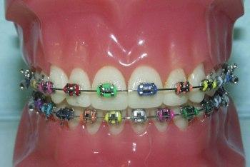 Braces Straighten Crooked Teeth