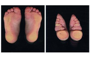 Preview chinese foot binding diagram pre