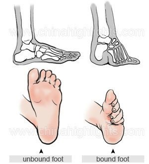 The difference in a unbound and bound foot