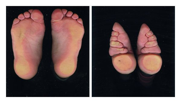 Chinese Foot Binding modifies the shape of their feet
